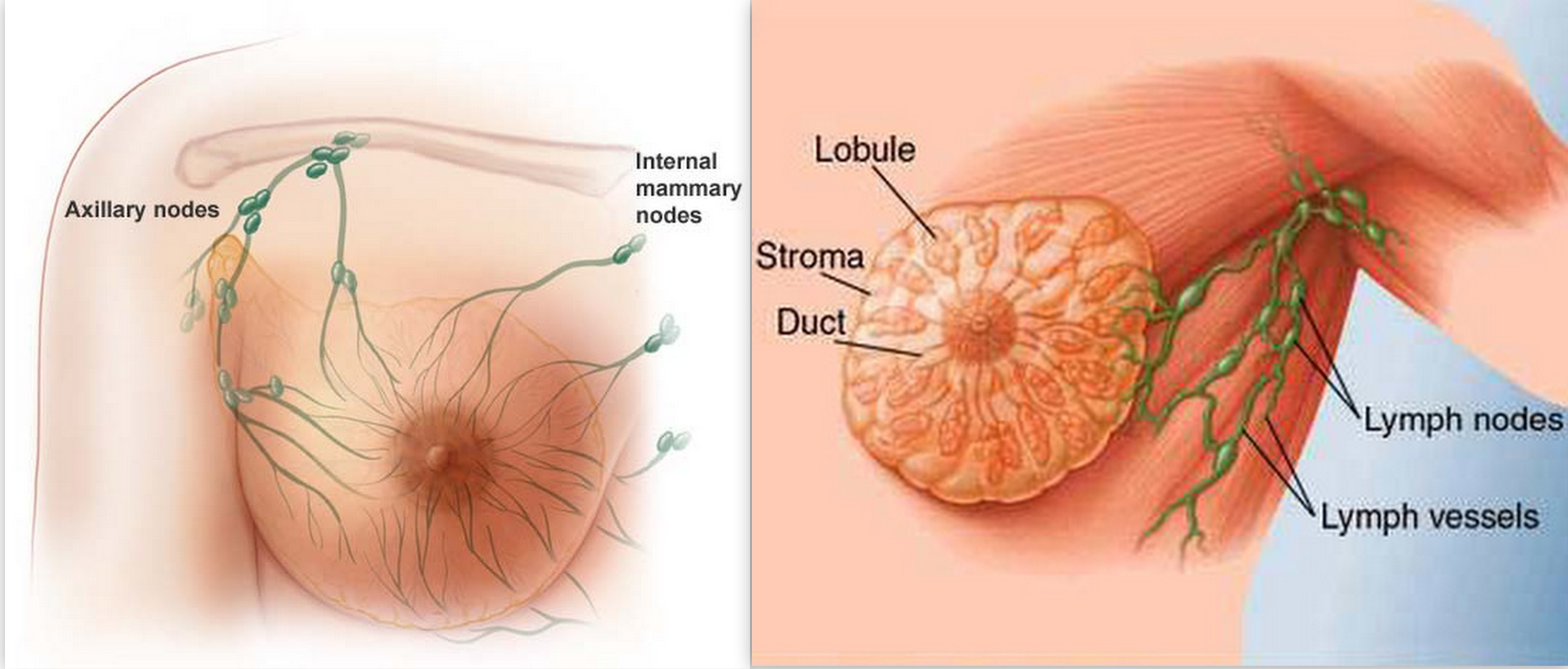 Male Breast Cancer – What Is Male Breast Cancer? What Causes Male ...